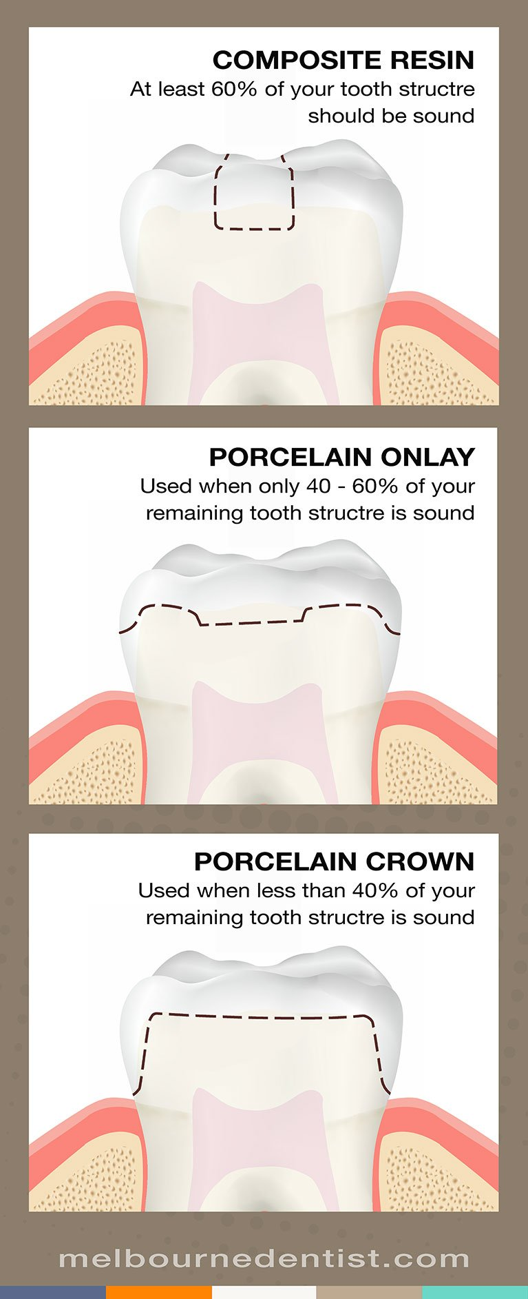 Resin vs onlays crowns